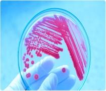 آخرین رتبه و تراز قبولی دکتری میکروبیولوژی دانشگاه آزاد 98 - 99